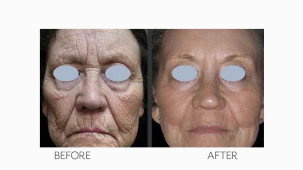 Women's Wrinkles Botox Treatment Before & After Result