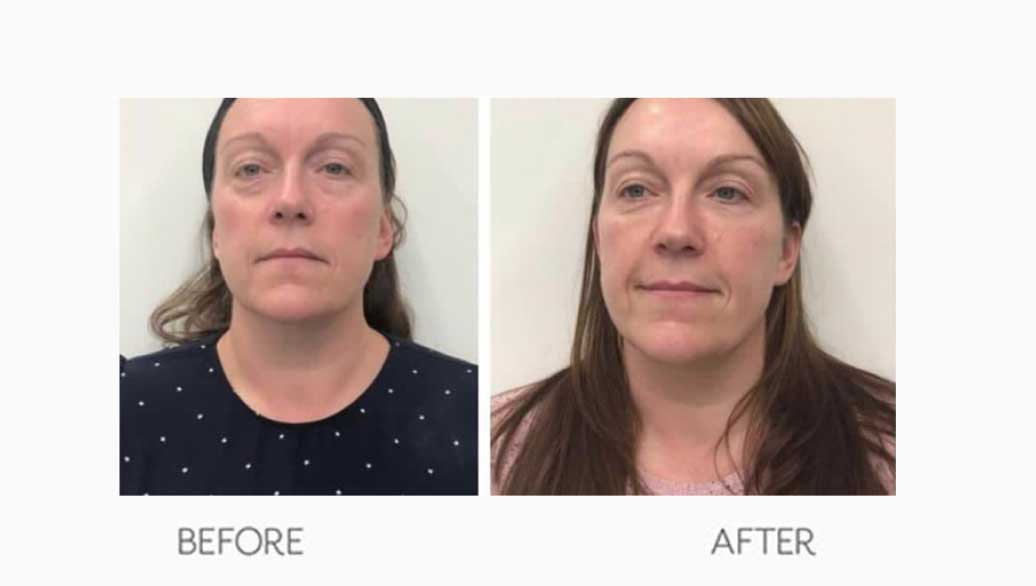 Women's Botox Treatment Before & After Result