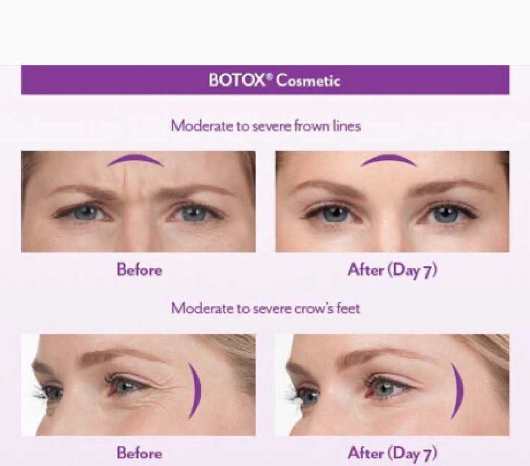 Botox Cosmetic Moderate to Severe Frown Lines & Crow's Feet