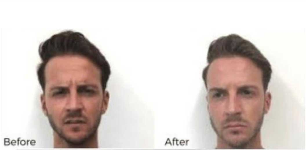 Men's Fine Lines Botox Treatment Before & After Result