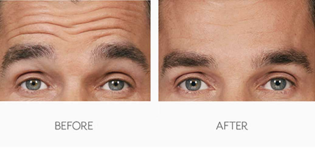 Men's Botox Treatment Before & After Result