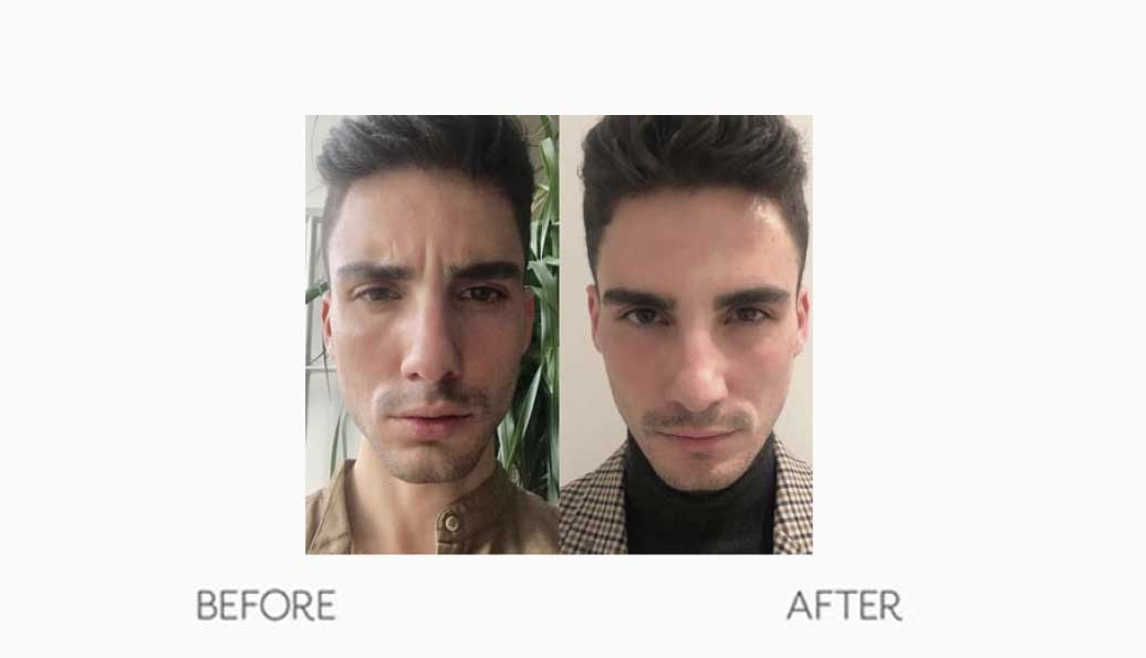 Men's Forehead Botox Treatment Before & After Result