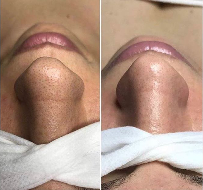 The Result After HydraFacial