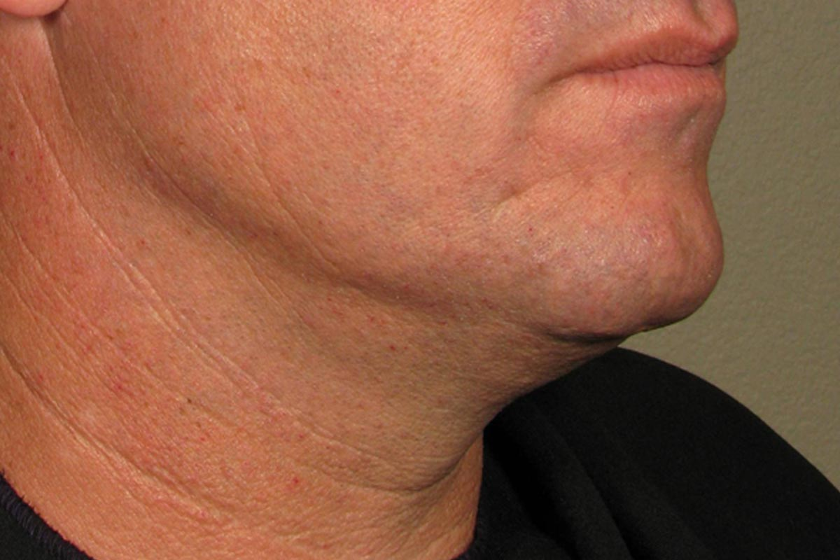 Ultherapy for Men After