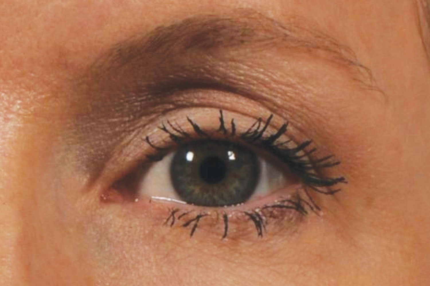 Ultherapy Under Eyes After