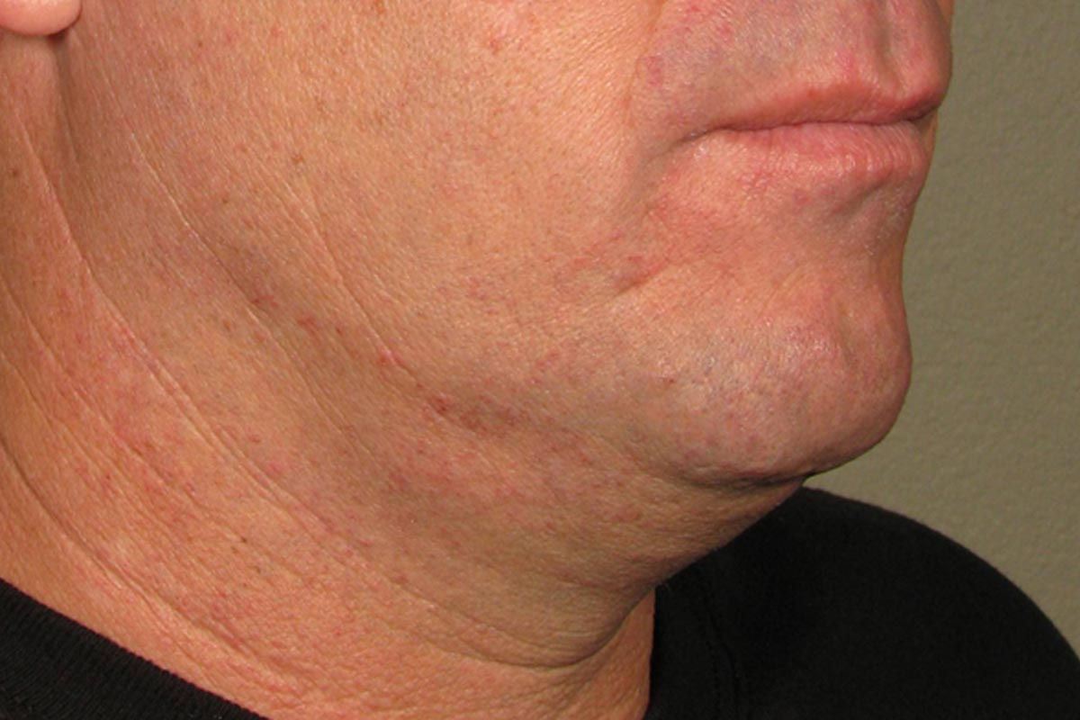 Ultherapy for Men Before