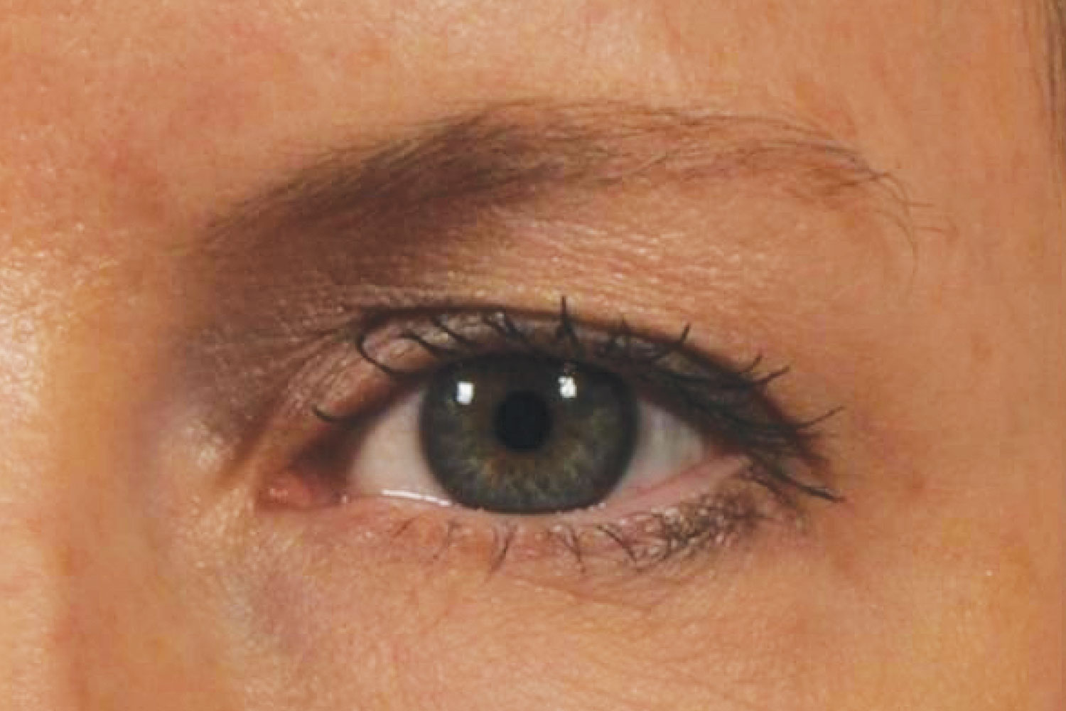 Ultherapy Under Eyes Before